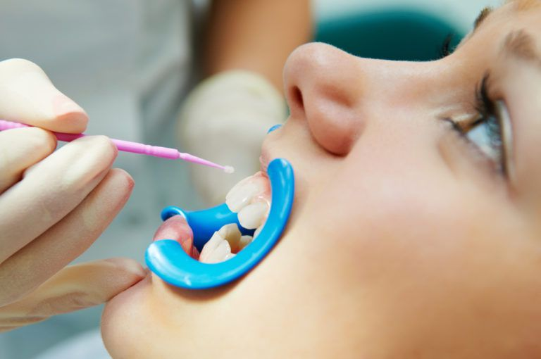 Dental Sealants - woman with open mouth during dental procedure