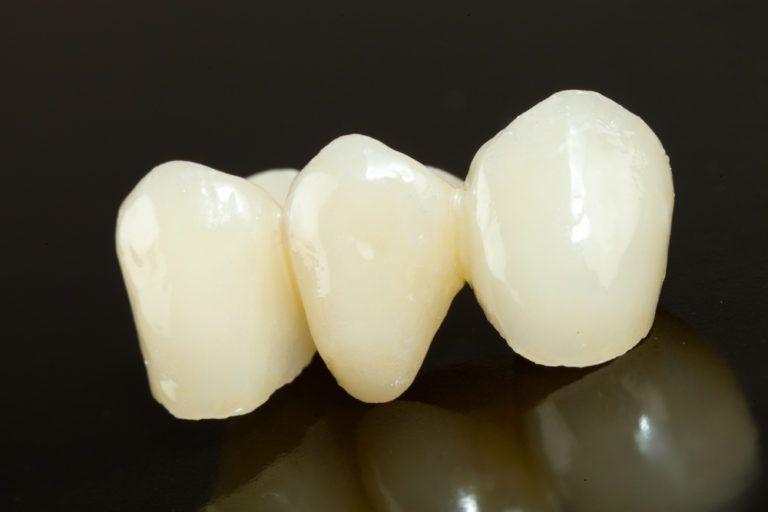 Highly aesthetic emax pressed ceramic bridge / crown