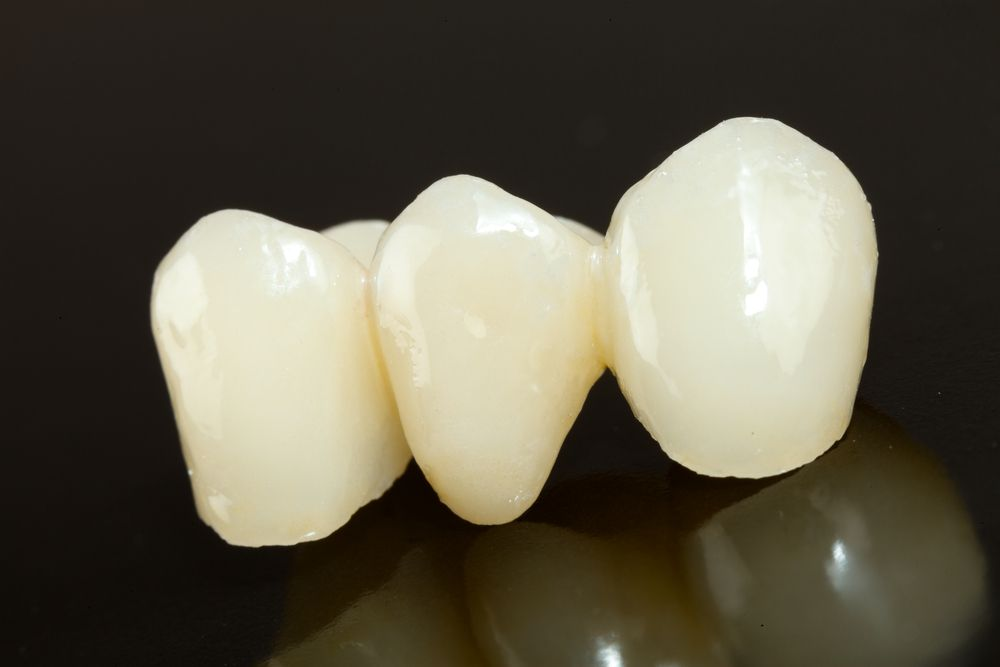 Highly aesthetic emax pressed ceramic bridge / crown