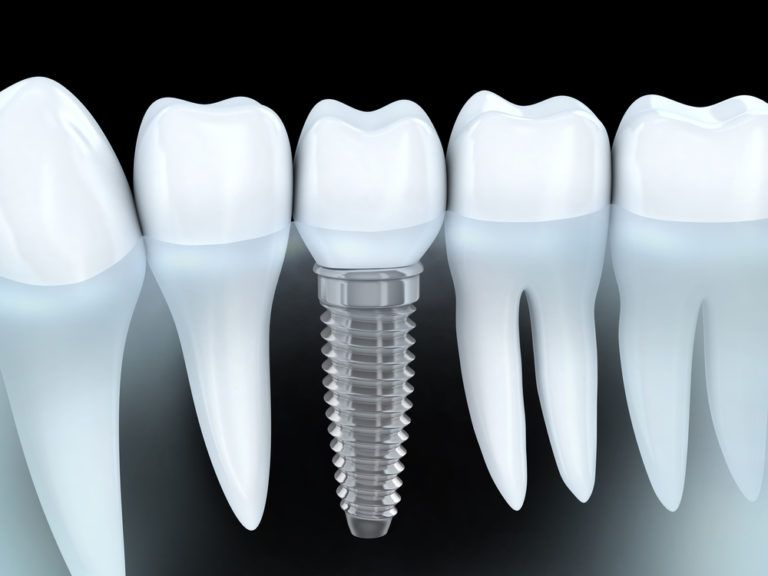 Tooth human implant (3d graphics)