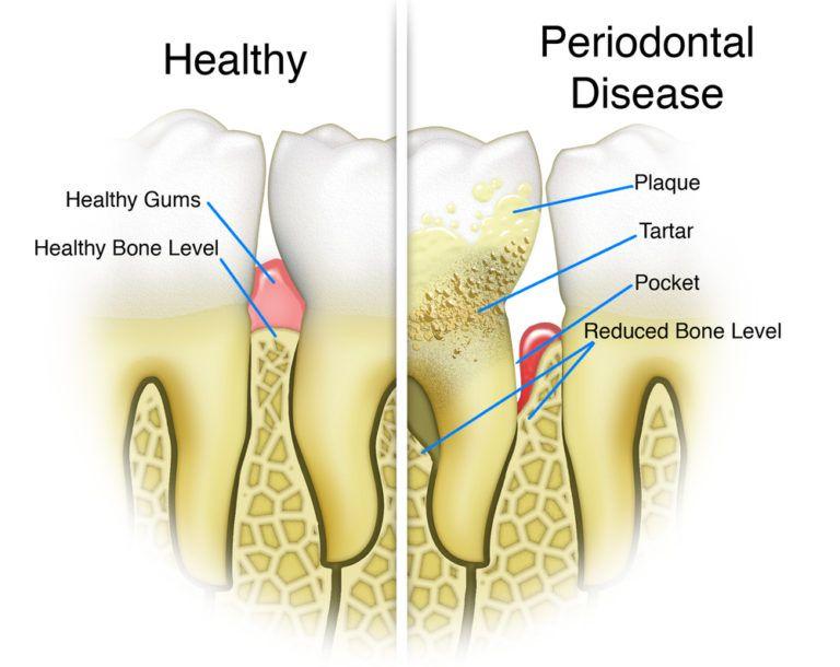 Periodontal Disease Detail