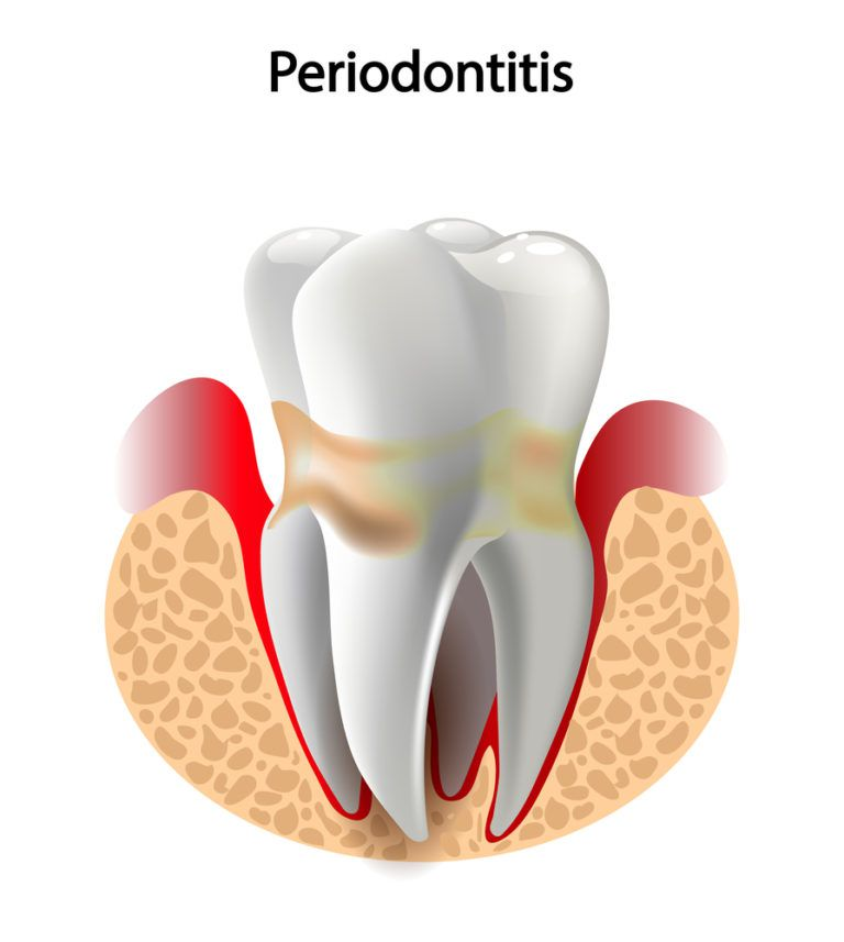 Deep caries Pulpitis Periodontitis